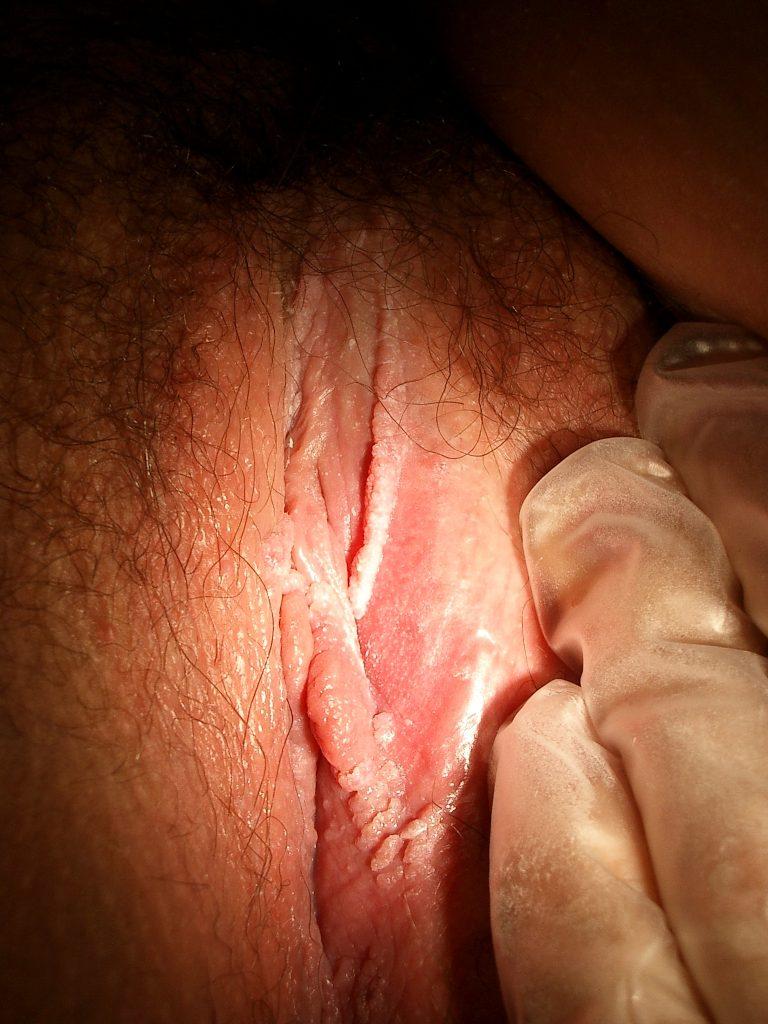 Genital Warts (Vulva)