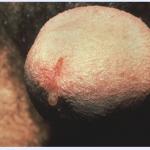 Chlamydia (Penis)