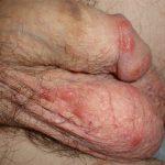 Nodular Scabies (Penis)