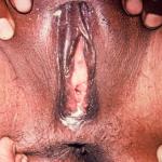 Gonorrhoea (Vulva)