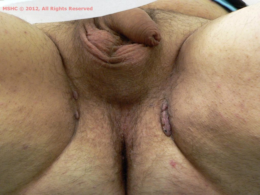 HPV (Groin Warts)