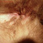 Perianal Vitiligo