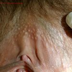 Sebaceous Glands (Fordyce Spots)