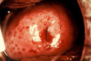 Trichtomoniasis (Cervix)